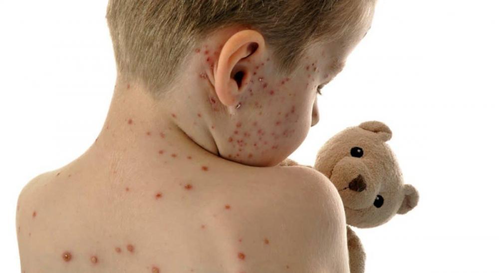O Ministério da Saúde recomenda a intensificação da vacinação de rotina